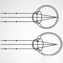 metode de tratare a miopiei bolilor oculare